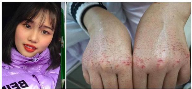 Bác sĩ 28 tuổi đột tử do kiệt sức sau 10 ngày đối phó virus corona - Ảnh 3.
