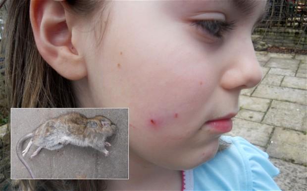 Top 5 điều khiến bạn nên sợ trước loài chuột, điều cuối sẽ làm bạn không dám nhắm mắt đi ngủ - Ảnh 5.
