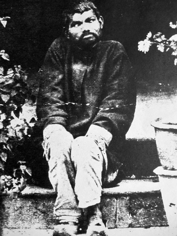 Nguyên mẫu đời thực của cậu bé rừng xanh: Không nói được tiếng người, sống như kẻ thiểu năng và chết trong bệnh tật sau 20 năm rời bầy sói - Ảnh 1.