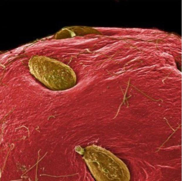 Chùm ảnh kinh dị khi nhìn qua kính hiển vi khiến người gan dạ nhất cũng phải rùng mình sởn gai ốc - Ảnh 3.