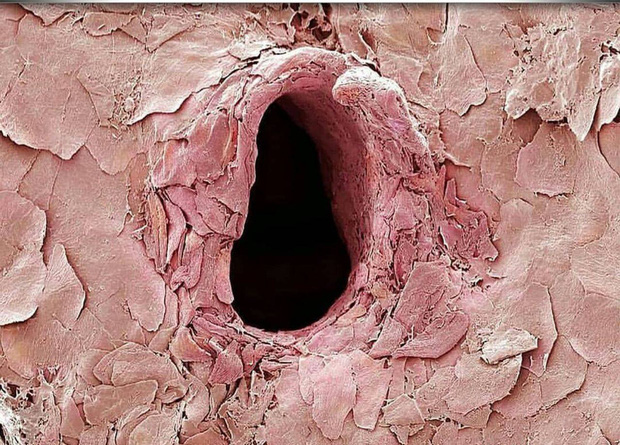 Chùm ảnh kinh dị khi nhìn qua kính hiển vi khiến người gan dạ nhất cũng phải rùng mình sởn gai ốc - Ảnh 1.