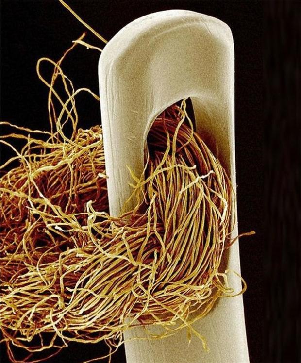 Chùm ảnh kinh dị khi nhìn qua kính hiển vi khiến người gan dạ nhất cũng phải rùng mình sởn gai ốc - Ảnh 10.