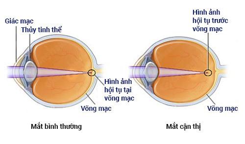 Ngồi nhìn màn hình quá lâu có hại cho mắt không? Đây là câu trả lời cho anh em - Ảnh 2.