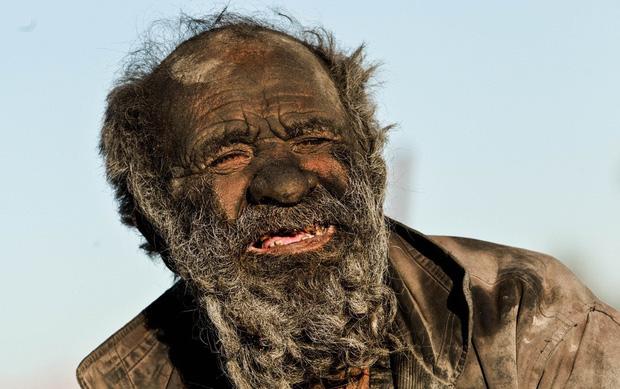 Chân dung người đàn ông được mệnh danh bẩn nhất thế giới suốt hơn 60 năm không tắm dù chỉ 1 lần, nhìn diện mạo ai cũng rùng mình - Ảnh 1.