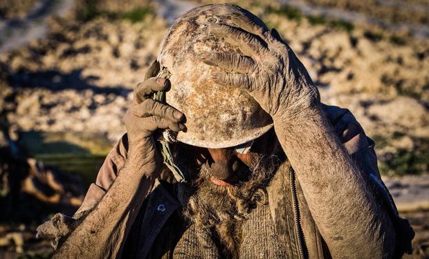 Chân dung người đàn ông được mệnh danh bẩn nhất thế giới suốt hơn 60 năm không tắm dù chỉ 1 lần, nhìn diện mạo ai cũng rùng mình - Ảnh 3.