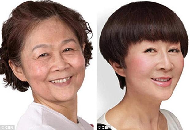 Giới trẻ Hàn Quốc dẫn phụ huynh đi phẫu thuật thẩm mỹ để báo hiếu - Ảnh 2.
