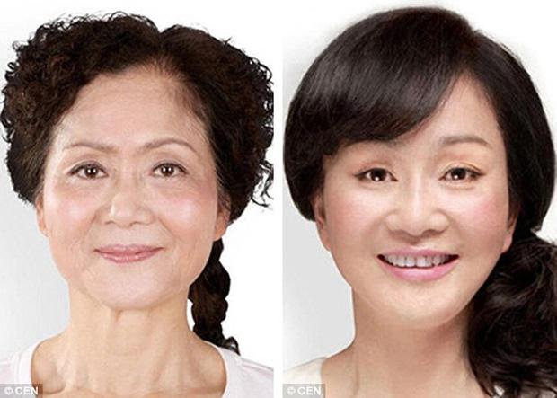 Giới trẻ Hàn Quốc dẫn phụ huynh đi phẫu thuật thẩm mỹ để báo hiếu - Ảnh 3.