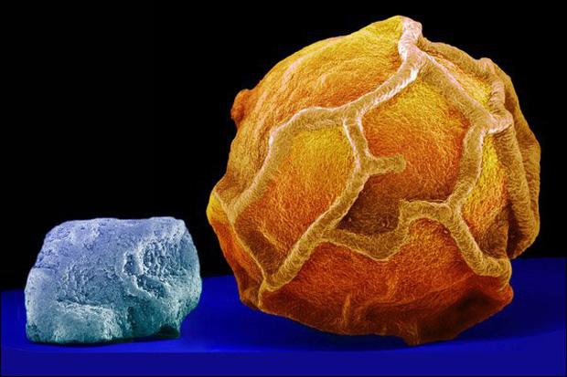 Những đồ vật được phóng đại qua kính hiển vi Photo-10-161996564573963536549