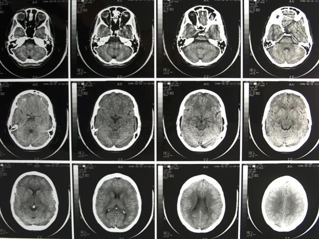 Thực hư chuyện con người chỉ dùng đến 10% não bộ