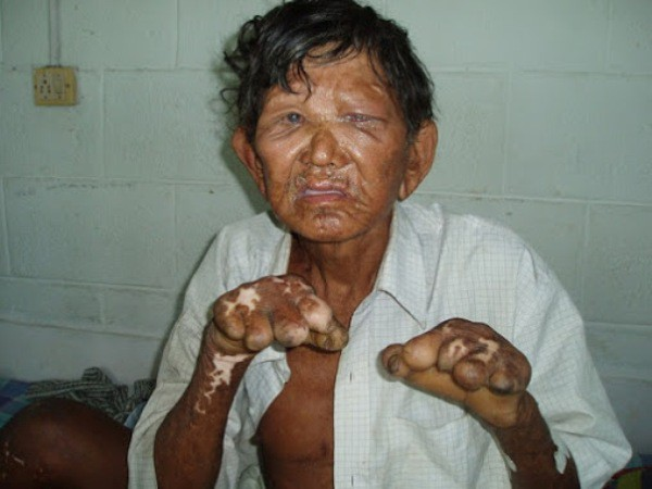 10 căn bệnh kinh dị nhất thế giới, số 1 khiến bạn khiếp vía vì quá đáng sợ - Ảnh 4.