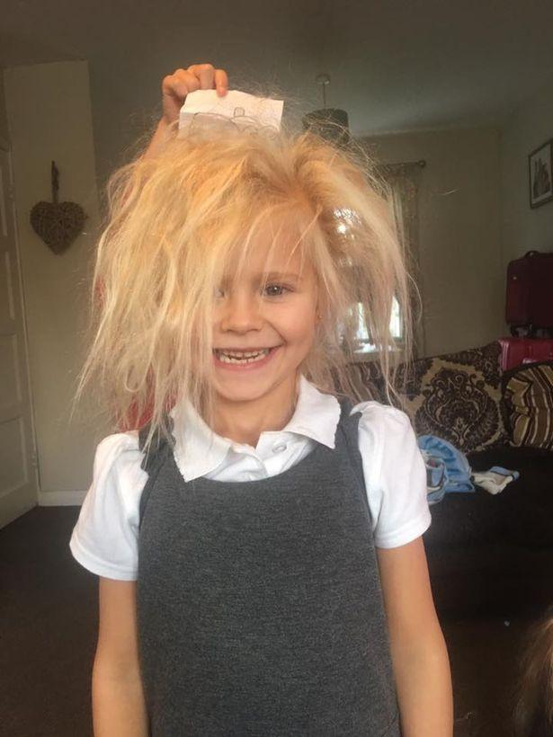 Cô bé 7 tuổi mắc hội chứng tóc rối hệt như búp bê sát nhân trong phim kinh dị - Ảnh 1.
