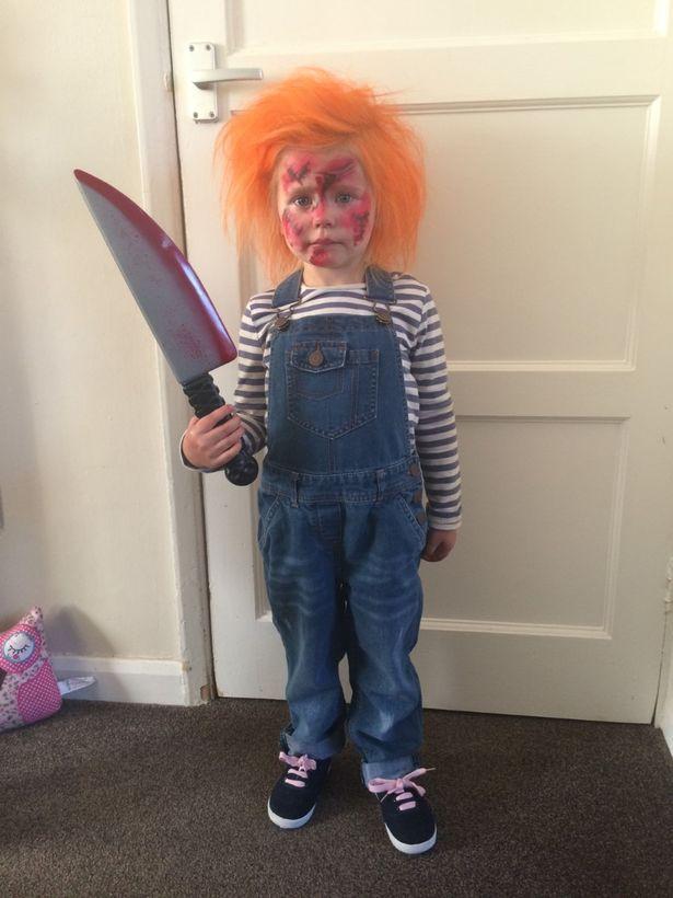 Cô bé 7 tuổi mắc hội chứng tóc rối hệt như búp bê sát nhân trong phim kinh dị - Ảnh 2.