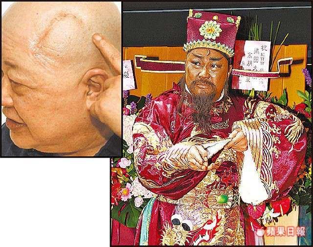 Trở thành triệu phú nhờ đóng Bao Công, Kim Siêu Quần về già không con cái, bệnh tật hành hạ - Ảnh 10.
