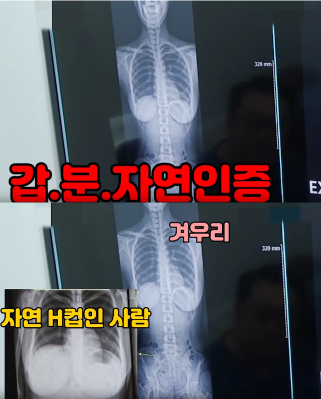 Nhảy quá sung trên sóng, nữ streamer phải đi viện vì đau lưng, vô tình bị fan soi ra vòng ngực cup H sau khi chụp X-quang - Ảnh 6.