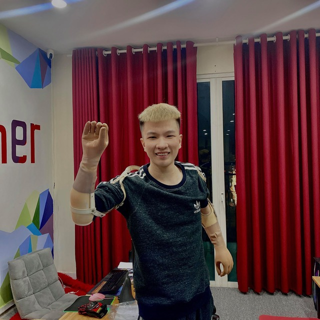 Chơi game bằng chân, nam streamer Free Fire nói gì về đôi tay giả mới update - Ảnh 2.