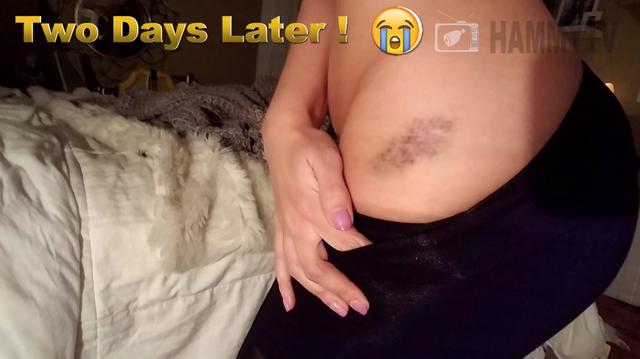 Giả chết để thử lòng bạn trai, nữ Youtuber nhận cái kết đắng ngắt, bầm dập cả vòng ba - Ảnh 5.
