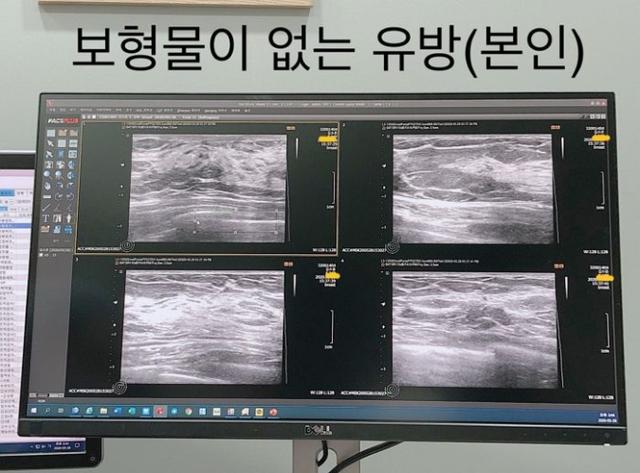 Bị fan nghi ngờ về việc hack cheat vòng một, nữ streamer xinh đẹp livestream luôn cảnh vào bệnh viện chứng thực ngực tự nhiên - Ảnh 5.