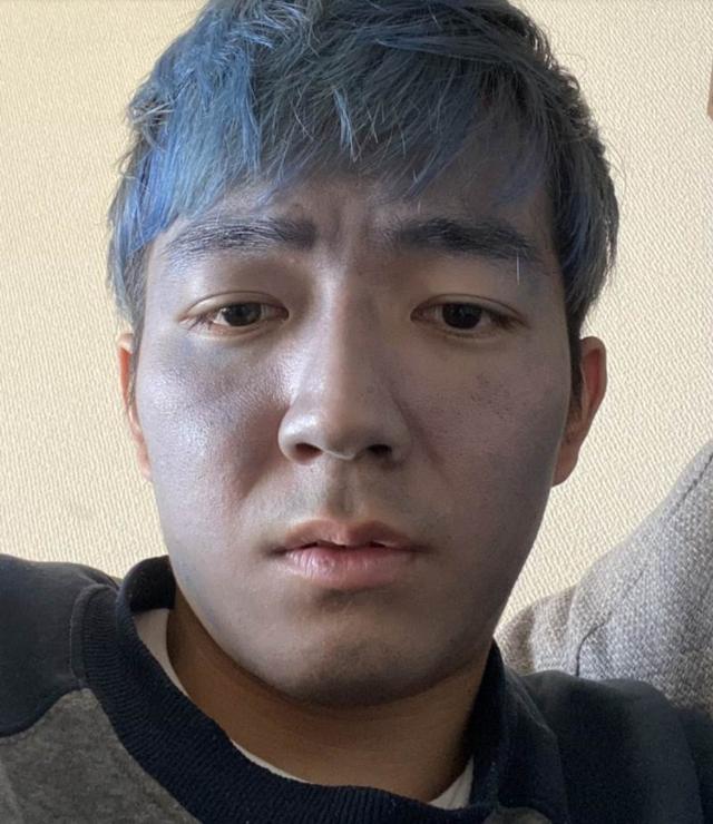 Dùng nhầm thuốc nhuộm tóc thay sữa rửa mặt, nam thanh niên đau xót khi bị cộng đồng mạng gọi là Thanos đời thực - Ảnh 1.