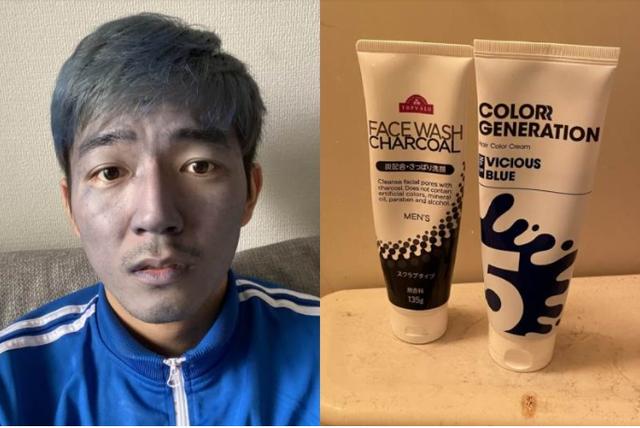 Dùng nhầm thuốc nhuộm tóc thay sữa rửa mặt, nam thanh niên đau xót khi bị cộng đồng mạng gọi là Thanos đời thực - Ảnh 2.