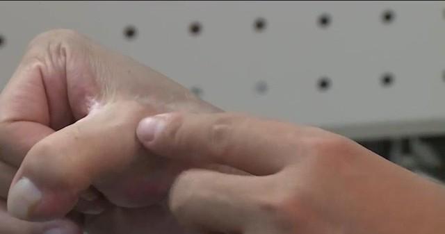 Việt Nam thực hiện thành công phẫu thuật siêu khó tầm cỡ quốc tế: lấy ngón CHÂN cái thay cho ngón TAY cái để phục hồi chức năng bàn tay! - Ảnh 7.