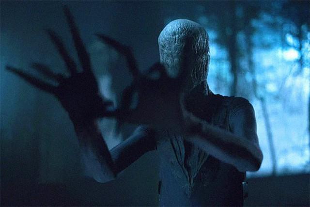Không cần CGI, chứng bệnh lạ kỳ khiến chàng trai cao 1m98, nặng 55kg trở thành siêu sao phim kinh dị - Ảnh 15.