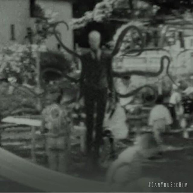 Không cần CGI, chứng bệnh lạ kỳ khiến chàng trai cao 1m98, nặng 55kg trở thành siêu sao phim kinh dị - Ảnh 16.