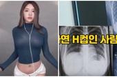 Nhảy quá sung trên sóng, nữ streamer phải đi viện vì đau lưng, vô tình bị fan soi ra vòng ngực cup H sau khi chụp X-quang