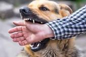 Tại sao con người bị chó cắn?