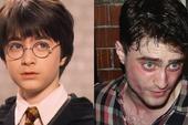 Daniel Radcliffe đổ lỗi vì Harry Potter quá hot biến anh thành kẻ nghiện rượu, đóng bao nhiêu phim cũng mãi vô danh