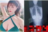 """Tự chụp X-quang để chứng minh vòng một là tự nhiên, nữ streamer xinh đẹp bất ngờ bị chỉ ra bằng chứng """"hack cheat"""" gò bồng đảo tinh vi"""