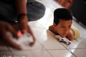 Cậu bé 11 tuổi bị khuyết tật không có cả tay lẫn chân, niềm vui duy nhất là chơi game