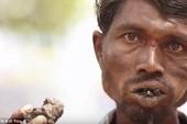 10 căn bệnh kinh dị nhất thế giới, số 1 khiến bạn khiếp vía vì quá đáng sợ