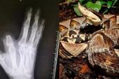 Bác nông dân chặt phăng ngón tay sau khi bị rắn cắn, một lúc sau mới biết nó... không có độc