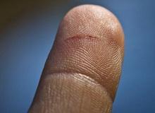 Vì sao tờ giấy trắng có thể cắt đứt tay, mà lại còn đau hơn cả dao?