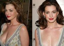 """""""Yêu nữ hàng hiệu"""" Anne Hathaway: Mỹ nhân quyến rũ nổi danh nước Mỹ với """"list"""" bạn trai dài không đếm xuể nhưng lại gục ngã trước tên lừa đảo và cái kết không ai ngờ"""