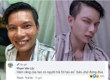 """Khoe ảnh tương phản giữa mặt mộc và qua chỉnh sửa, Lộc Fuho khiến fan choáng váng, tiết lộ vui """"Có người trả 5 tỷ mua hàm răng nhưng không bán"""""""