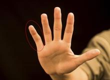 Cảnh báo! Nếu ngón tay biến dạng thế này thì tác hại của việc dùng điện thoại quá nhiều đã khá nghiêm trọng