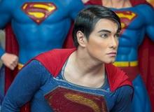 """Gặp gỡ người trải qua 23 lần phẫu thuật để trở thành """"Superman"""""""