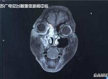 Chơi game 15 ngày liên tục trong đợt nghỉ Tết Nguyên Đán, cậu bé 11 tuổi đột ngột bị mù mắt