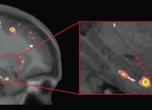 Khoa học chứng minh chơi Đột Kích, CS:GO quá nhiều có thể làm suy giảm lượng chất xám trong não
