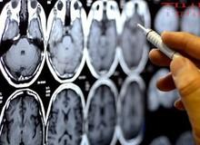 Càng hoạt động não bộ nhiều con người càng chết sớm, ít dùng não lại sống lâu