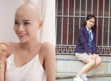 Nụ cười rạng rỡ của nữ sinh Ngoại Thương, 19 tuổi đã đầy nghị lực đương đầu với bạo bệnh