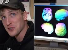 Muốn biết tại sao mình luôn gây tranh cãi, Paul Logan tiến hành mổ xẻ não bộ bản thân