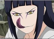 Naruto: Chọc mù mắt tôi đi, sao Hinata với Sakura sao lại biến thành 2 ả xấu xị, dị hợm thế này