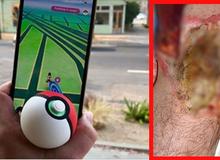 Truy tìm Pokemon, nam game thủ nhận phải chấn thương rùng rợn