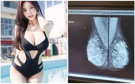 Bị nghi ngờ hack cheat vòng một, cô nàng hot girl quyết tâm đi chụp X-quang, chứng minh ngực của mình tự nhiên 100%