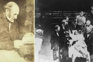 Bác sĩ phẫu thuật tai tiếng nhất thế kỷ 19: Mổ 1 nhưng chết 3, cắt chân nhanh quá xẻo nhầm cả tinh hoàn bệnh nhân
