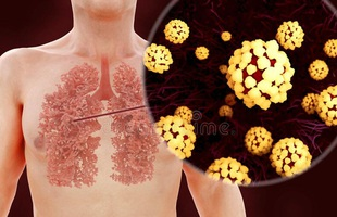 [Infographic] Đây là cách virus Covid-19 tàn phá cơ thể người